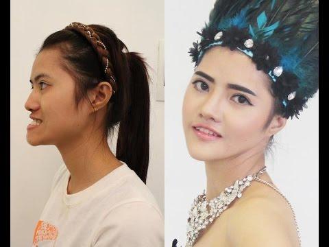 Top 3 cô gái Việt từ VỊT hóa THIÊN NGA nhờ thẩm mỹ