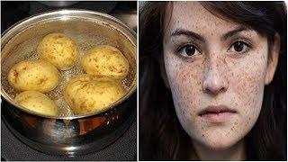 1 củ khoai tây - Bí quyết trị sạch nám tàn nhang vĩnh viễn khiến hàng tỷ phụ nữ muốn làm ngay