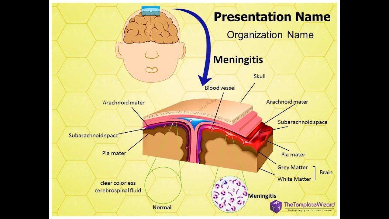 Brain Infection Meningitis Powerpoint Template