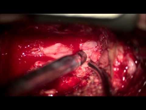 Лапароскопическая холецистэктомия: операция по удалению
