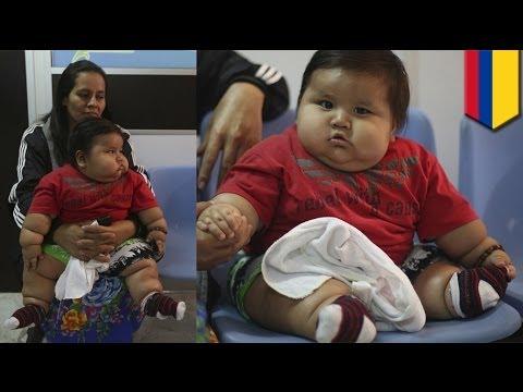 Pinakamatabang baby sa Colombia, kinuha ng charity na Chubby Hearts Foundation!