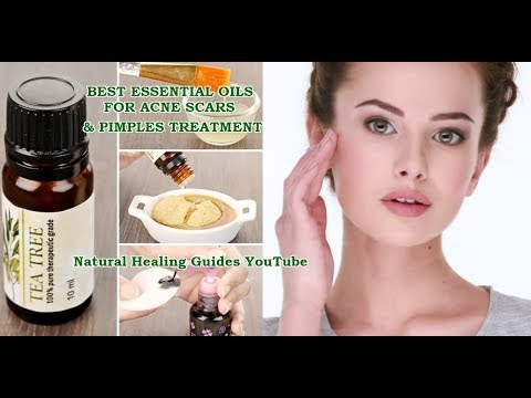 best-essential-oils-for-treating-acne-scars,-pimples-and-blackheads-(natural-skin-care-routine)