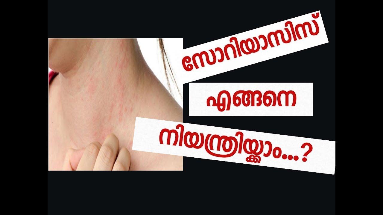 psoriasis types in malayalam)