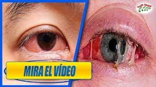 Cover images 5 razones para dormir sin lentes de contacto