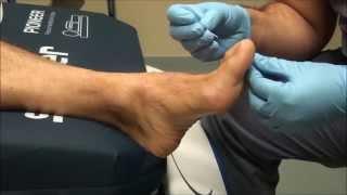 Neurologic Examination of the Foot: Pin Prick Testing