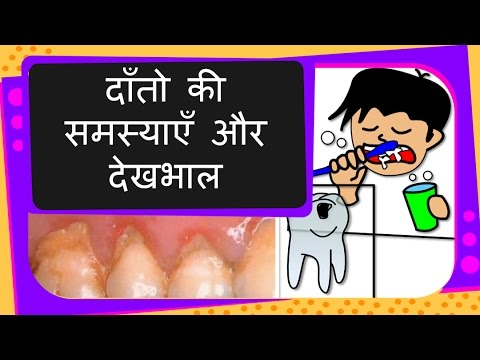 Science How To Take Care Of Teeth Teeth Problem And Solutions