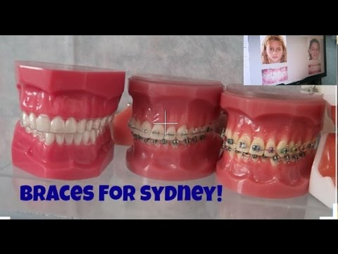 Sydney Talks Braces!