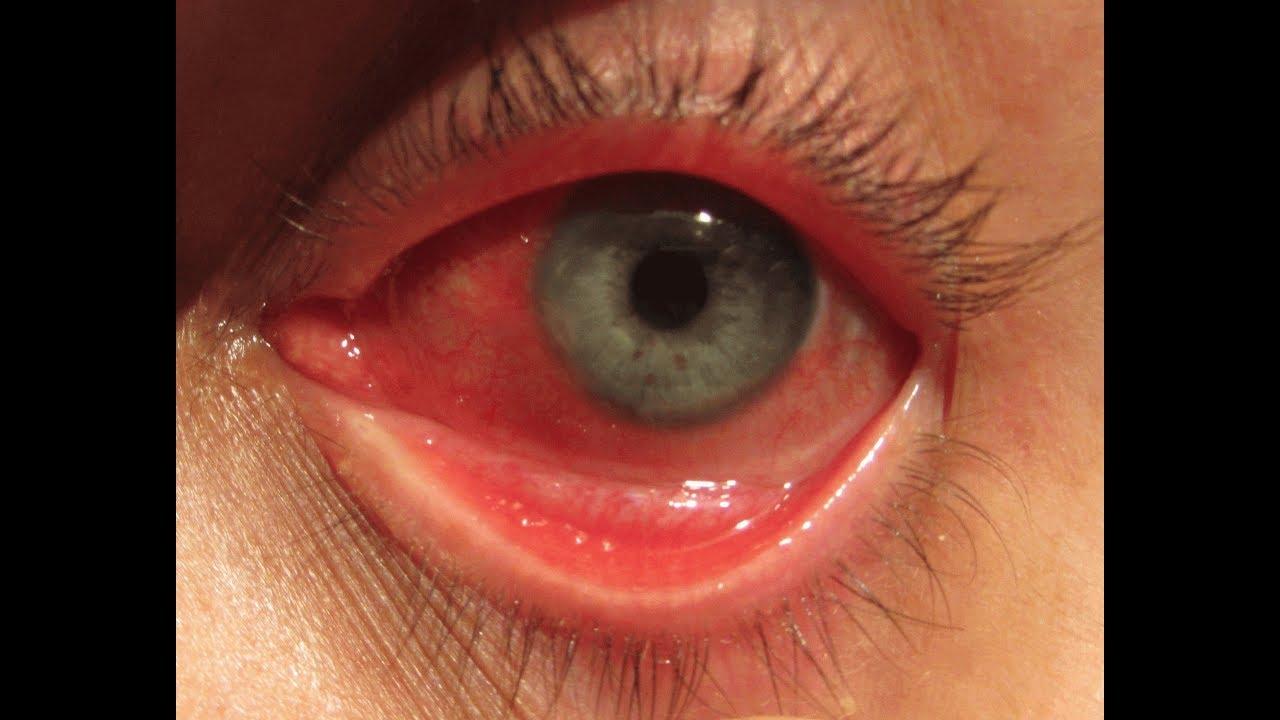 Bệnh đau mắt đỏ bạn cần biết
