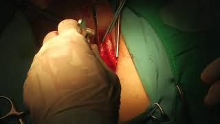 PUTRA LESSY setelah Operasi HERNIA, ENAKKKKKKK!!!!.