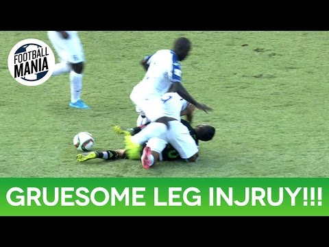 Luis Garrido Gruesome Leg Injury!!! - Honduras vs. Mexico