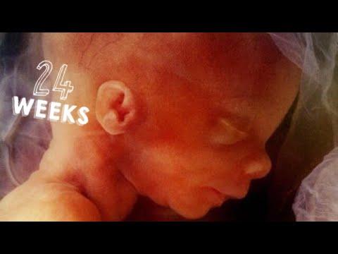 cuanto pesa un bebe de 24 semanas en el vientre