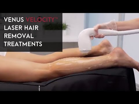 Venus Velocity™ Laser Hair Removal Treatments