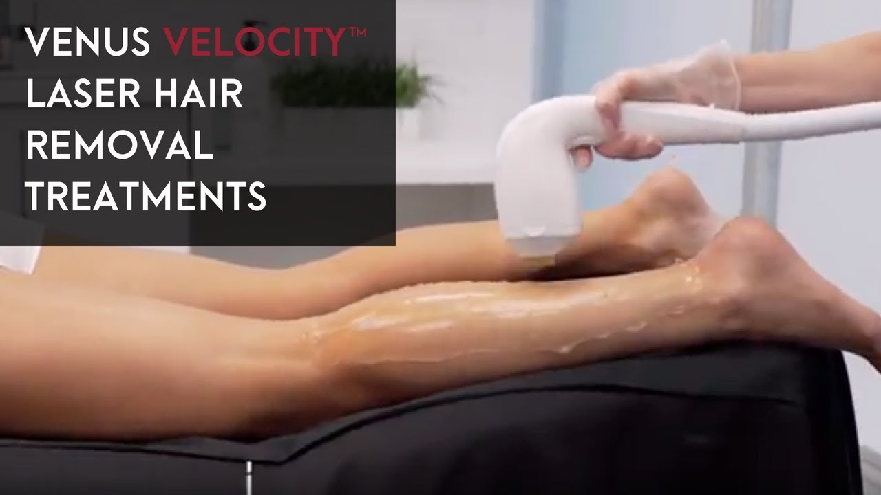 Venus Velocity Laser Hair Removal Treatments Youtube
