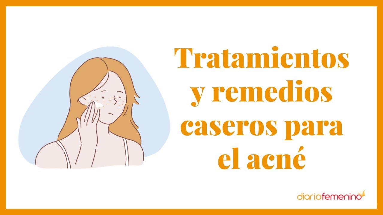 El tratamiento más efectivo para el acné según una dermatóloga | Cómo eliminargranos para siempre