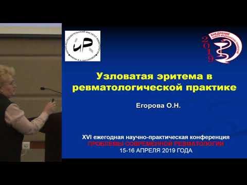 Егорова О.Н., Узловатая эритема в ревматологической практике.