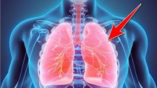 SOS: Τα σημάδια που δείχνουν συσσώρευση υγρού στον πνεύμονα