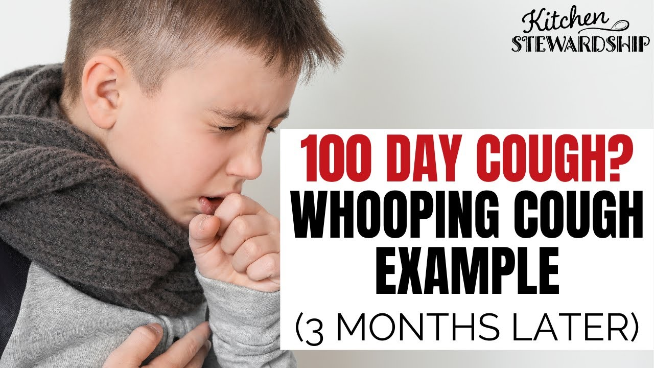 Whooping Cough example toddler after 3 months - YouTube