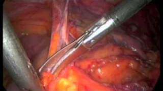 Laparoscopische sigmoid resectie
