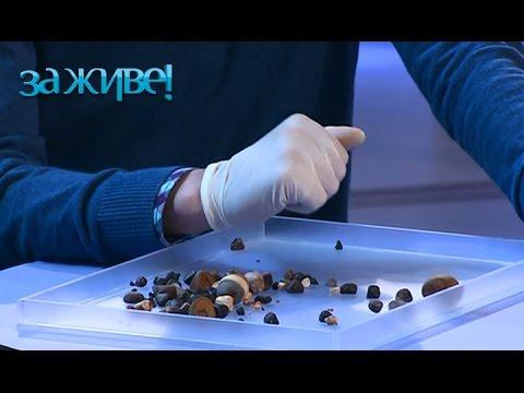 Камни в желчном пузыре - лечение народными средствами