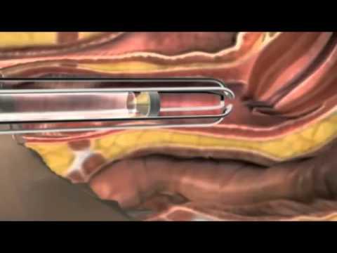 ▶ Thu hẹp âm đạo, trẻ hoá âm đạo-Không phẫu thuật