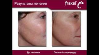 Fraxel - результаты лечения(Омоложение лазером Fraxel, лечение морщин рубцов и пигментаций. Резудьтаты лечения - до и после., 2009-11-27T09:20:07.000Z)