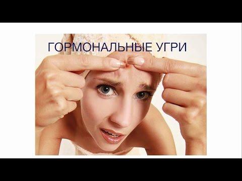 Аллергия после пилинга  причины симптомы
