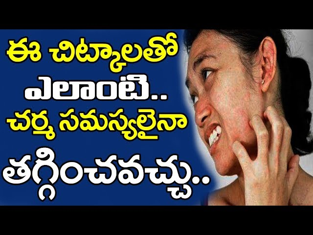 Best Home Remedies For Skin Allergies | Best Tips To Solve Skin Rashes Telugu