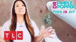 This is Zit: Ein riesiger Mitesser | Dr. Pimple Popper | TLC Deutschland