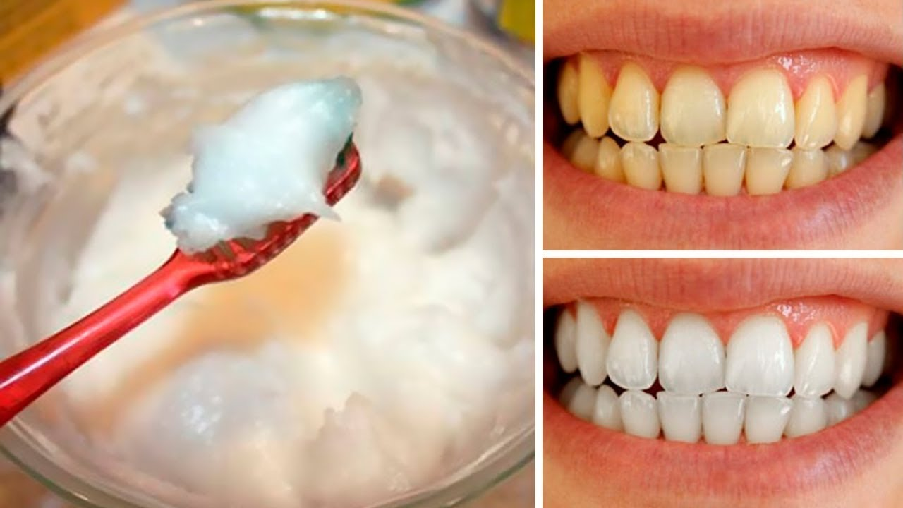 How To Naturally Whiten Your Teeth At Home In 3 Minutes Youtube