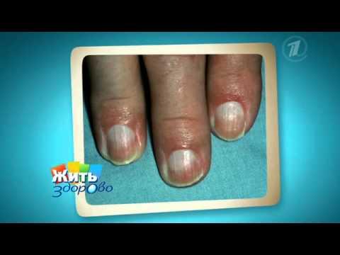Сильные боли в кистях рук – почему болят и чем лечить