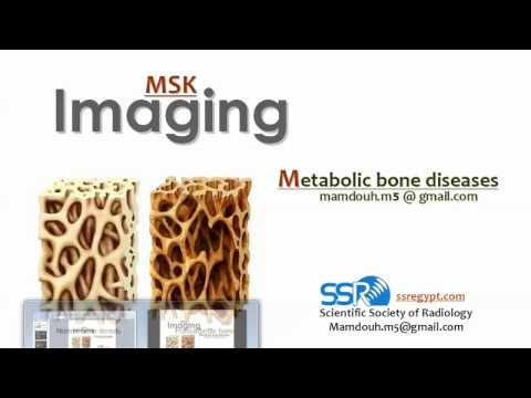Imaging Of Metabolic Bone Disease I - DRE 20 - Prof. Dr. Mamdouh Mahfouz