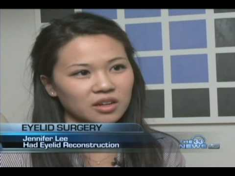 Asian Double Eyelid Blepharoplasty 33 News (Dallas, Texas)