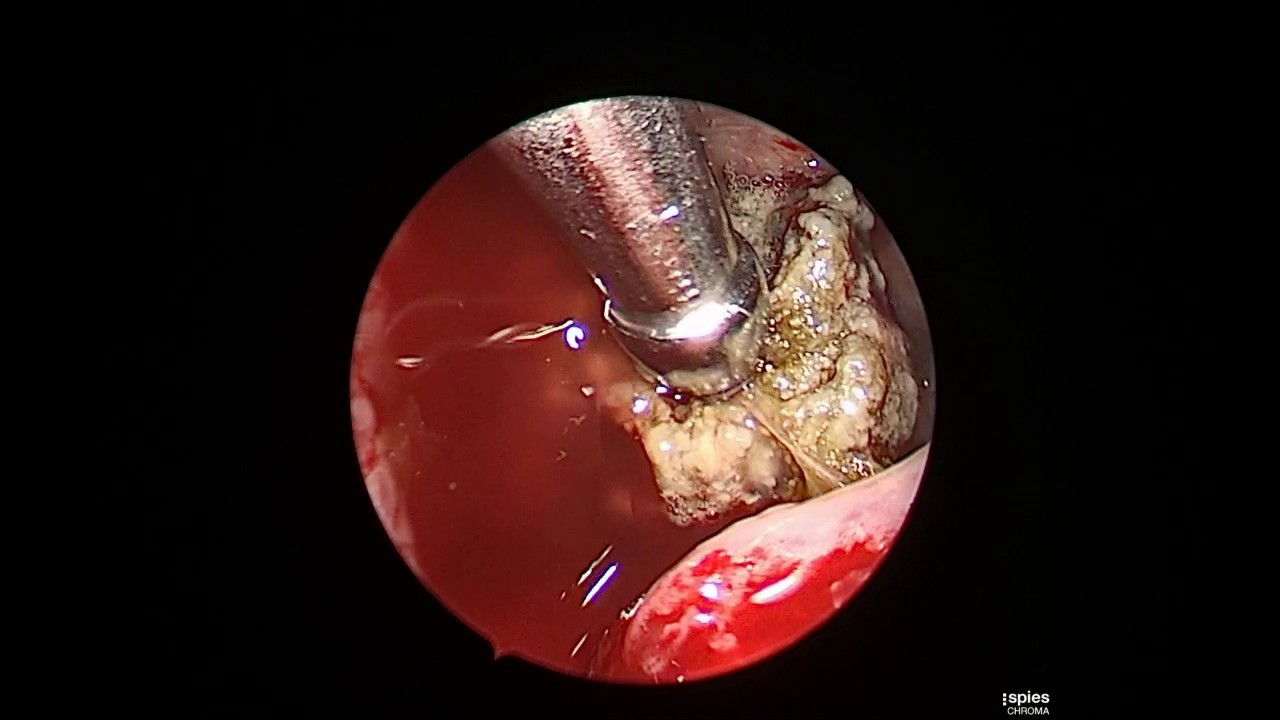 La de que consiste sinusitis operacion en