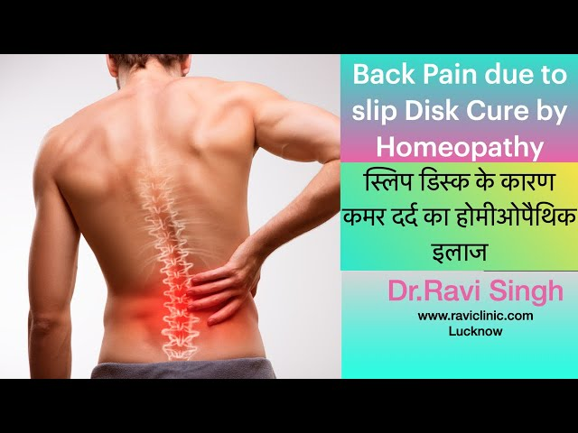 Back Pain Due to Slipped Disk Cured By Homeopathy Dr.Ravi Singh