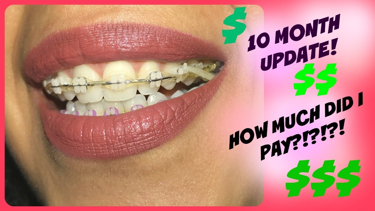 How much do braces cost in new mexico