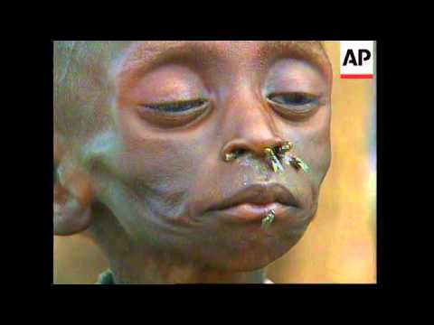 SUDAN: FAMINE CONDITIONS WORSENED BY UPSURGE IN FIGHTING