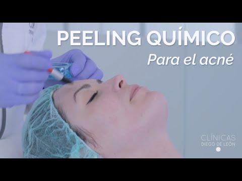 Peeling Químico para Eliminar Marcas de Acné en Clínicas Diego de León