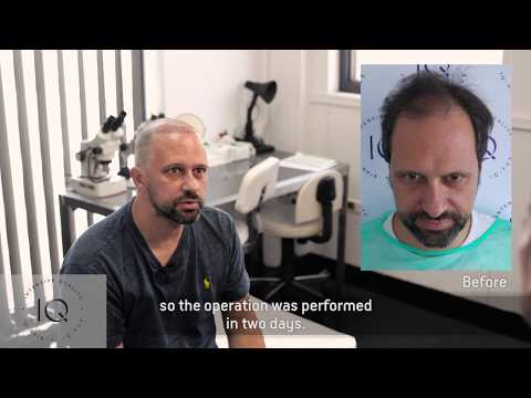 The Hair Transplant Testimonial of Mr Simone Cerri