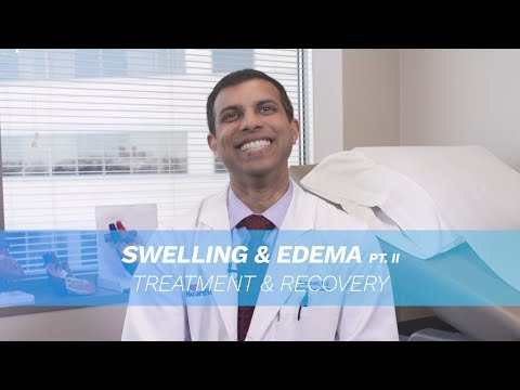 Leg Swelling / Edema Can Be Treated
