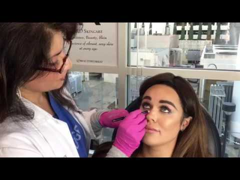 Liquid Rhinoplasty with Radiesse