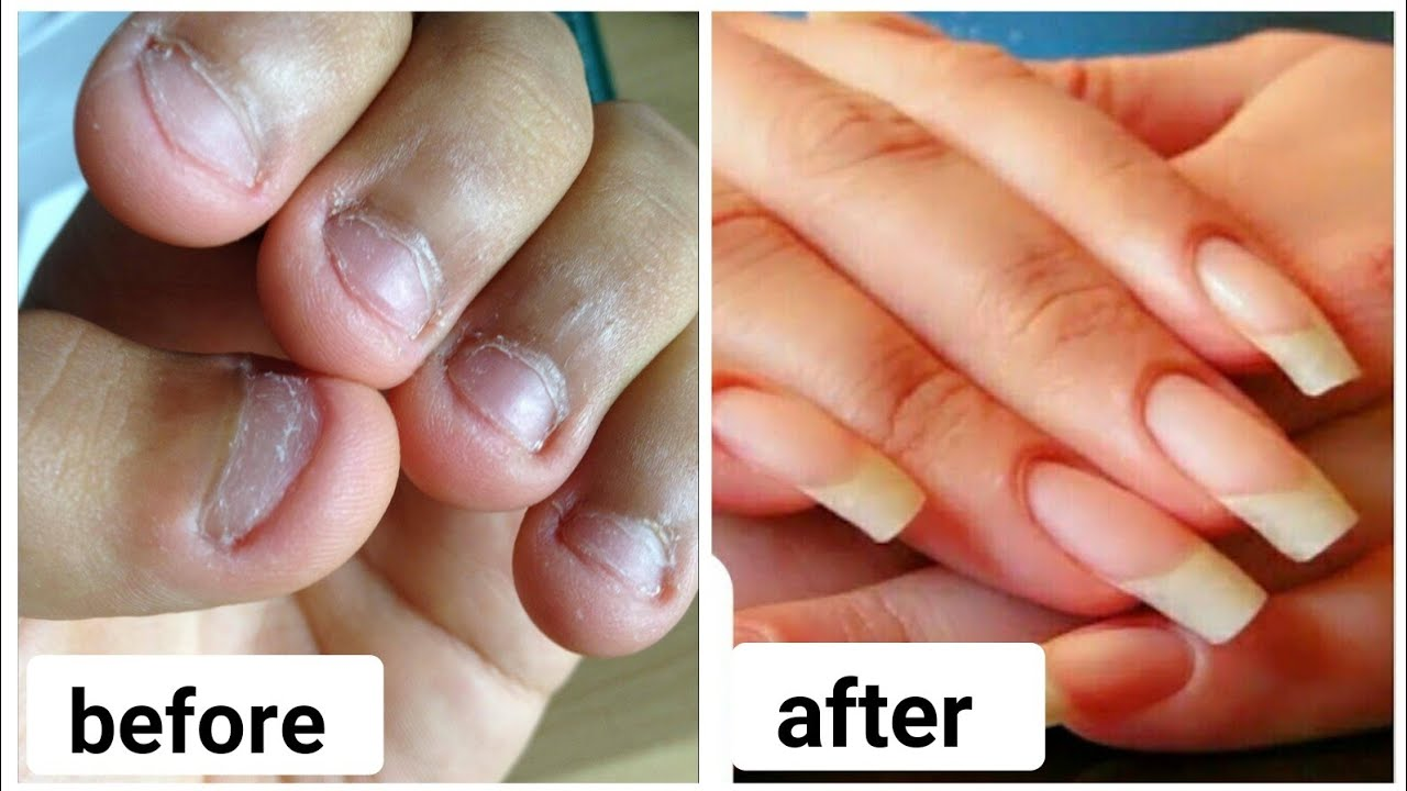 How To Grow Nails Faster Strong At Home Bitten