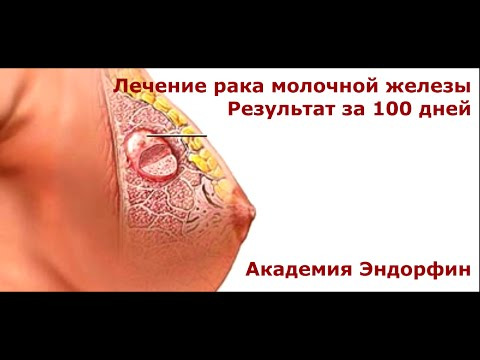 Рак молочной железы - симптомы, лечение, профилактика