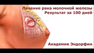 Результат лечения рака молочной железы(, 2015-07-12T19:46:05.000Z)