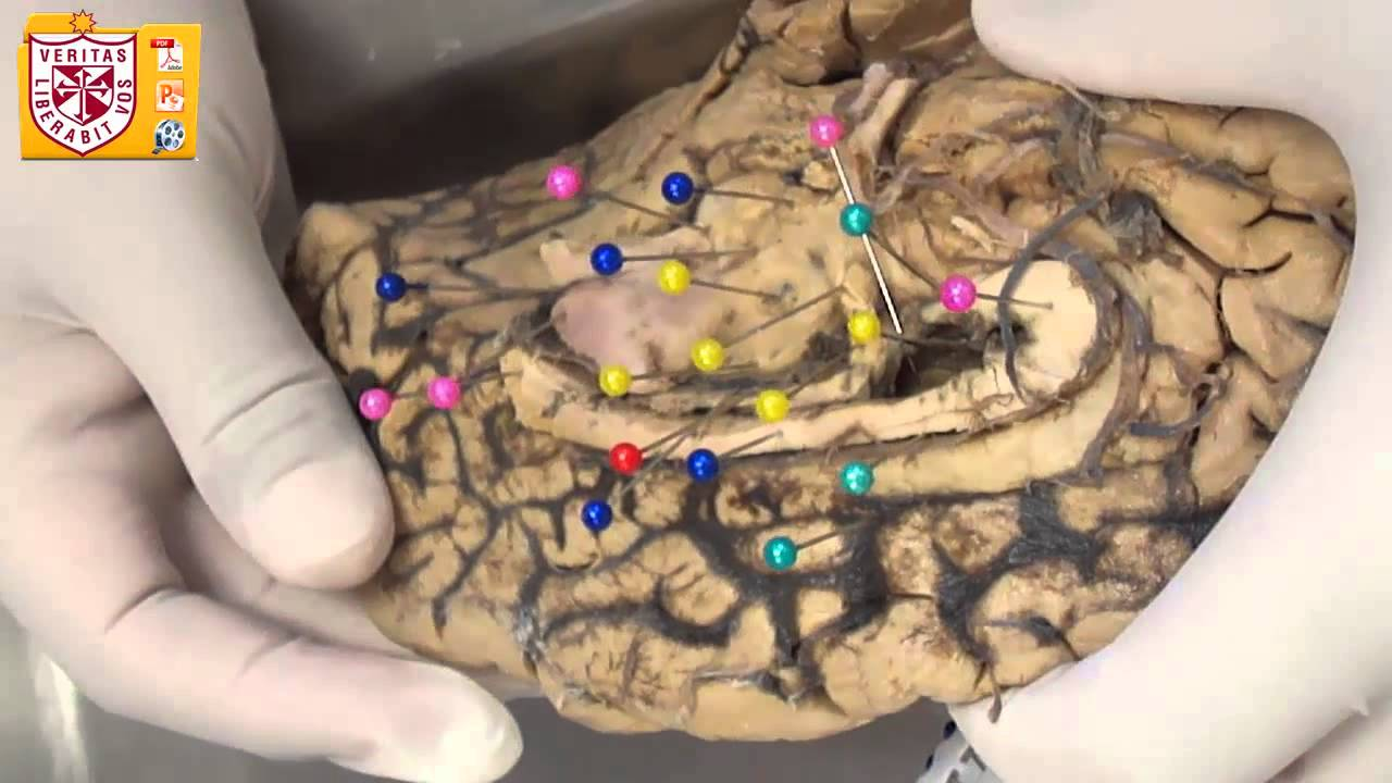 Anatomía [Lab] - Diencéfalo, Tálamo y Subtálamo - YouTube