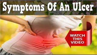 Symptoms Of An Ulcer, H Pylori Natural Treatment, H Pylori Treatment Natural, Diet For H Pylori