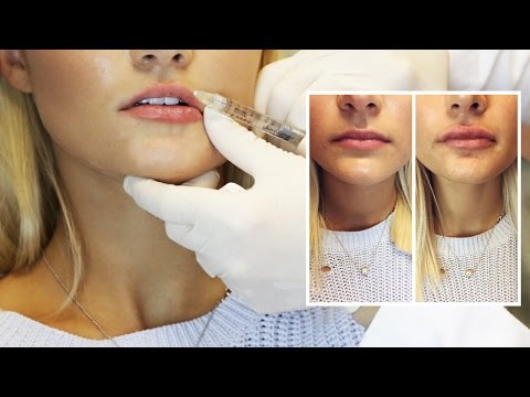 Lip Filler Experience   Start to Finish with 1 Syringe of