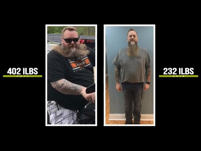This Guy Lost  170 Lbs | Weight Loss Success Story | BodyRx Louisville Medical Weight Loss Service