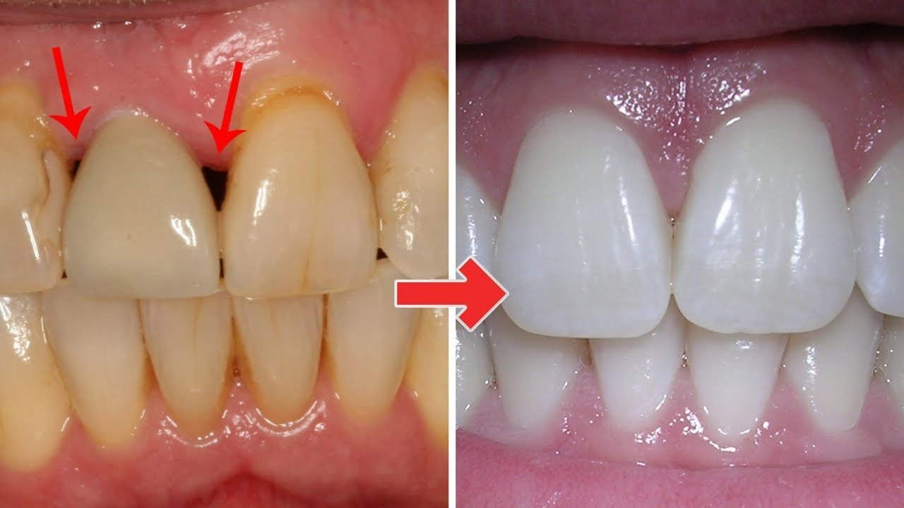 Periodontal treatment at home