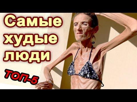 Самые худые люди в мире - Топ10