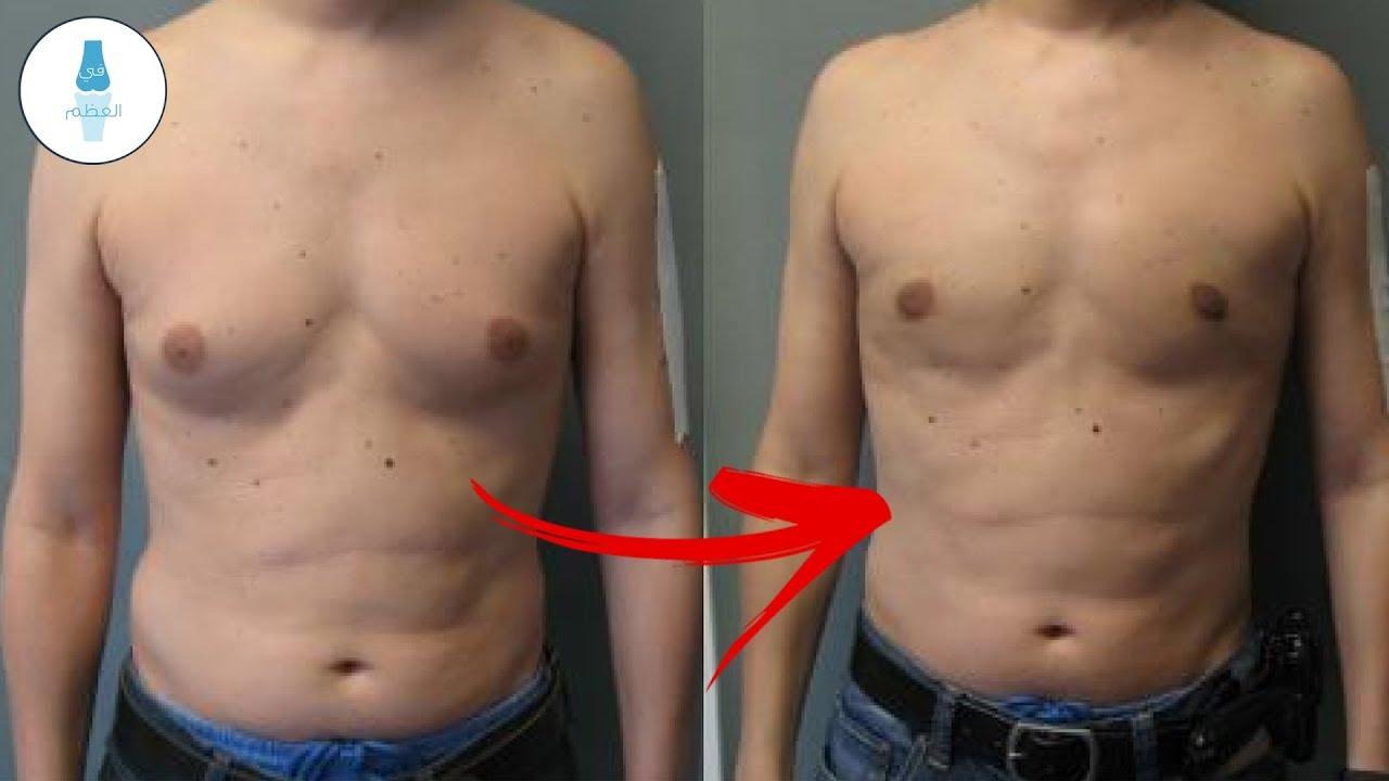 كيف تتخلص من تثدي الرجال | اسباب وعلاج التثدي عند الرجال